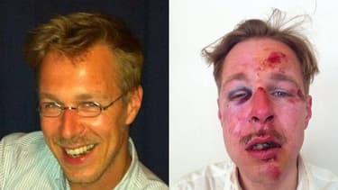 Wilfred de Bruijn a posté sur Facebook une photo de lui après la violente agression dont il a été la cible.