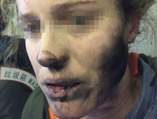 Photo prise le 19 février 2017 d'une Australienne brûlée au visage et au cou par ses écouteurs qui ont pris feu durant un vol entre Pékin et Melbourne