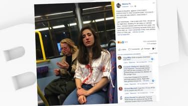 Melania Geymonat a dévoilé sur Facebook la photographie de son visage ensanglanté, et de celui de sa petite amie Chris, après avoir été attaquées dans un bus londonien.