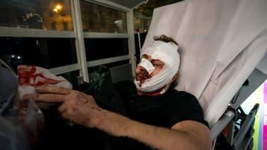 """Le photographe syrien Ameer al-Halbi, blessé à Paris, le 28 novembre 2020 lors de la manifestation contre le texte de loi """"sécurité globale"""" et les violences policières"""