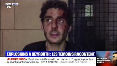 De nombreux habitants de Beyrouth blessés par les éclats de verre provoqués par les explosions