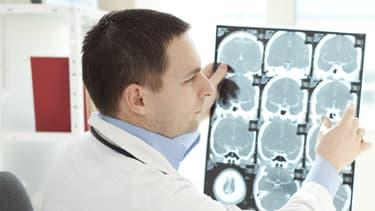 La maladie d'Alzheimer est la plus fréquente des démences.