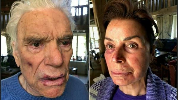 Bernard et Dominique Tapie après avoir été agressés lors d'un cambriolage à leur domicile, dimanche 4 avril 2021