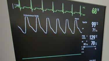 La banque Halifax mise sur un bracelet qui mesure les signaux électriques du coeur.