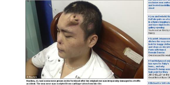 Xiaolan, un Chinois a la face mutilée par un accident de voiture, a un nez sur le front.