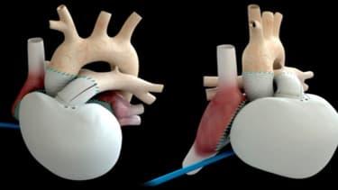 Le coeur artificiel de Carmat va être implanté pour la première mondiale sur des patients en France.