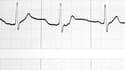 Graphe d'un battement de coeur