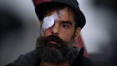 Jérôme Rodrigues, blessé lors d'un rassemblement de gilets jaunes à Paris, le 26 janvier 2019