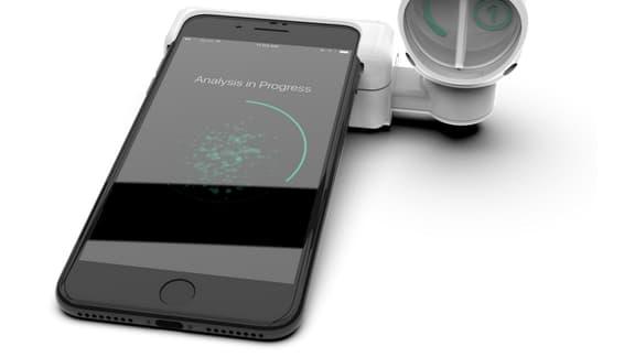 Sanofi s'est allié avec la start-up californienne Luminostics pour créer un test de détection du Covid-19.