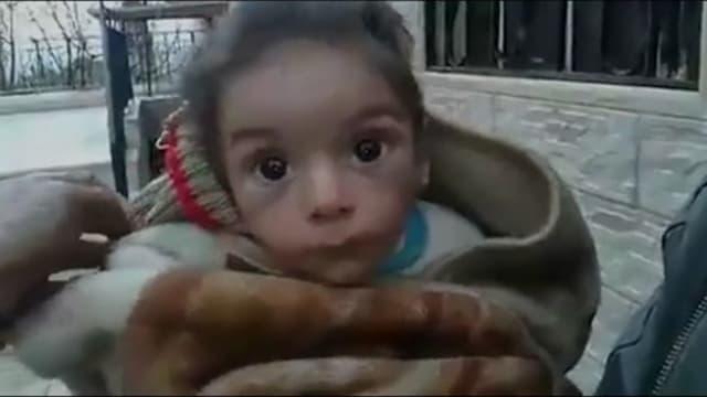 La photo de cet enfant, souffrant visiblement de malnutrition et présenté comme vivant dans la ville syrienne assiégée de Madaya, a circulé ces derniers jours sur les réseaux sociaux.
