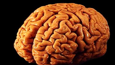 Un cerveau humain masculin est identique à un cerveau humain féminin