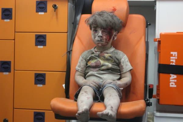 Omrane, un enfant syrien de quatre ans, a été photographié alors qu'il venait d'être sorti des décombres de sa maison, bombardée à Alep, le 17 août. Son portrait a fait le tour du monde.