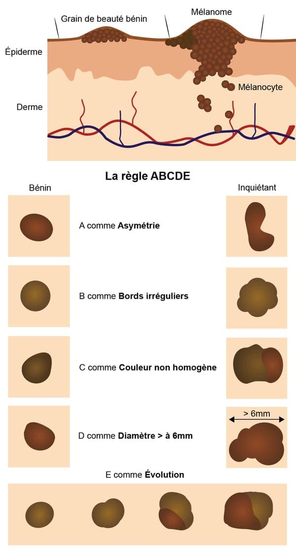 infographie grains de beauté