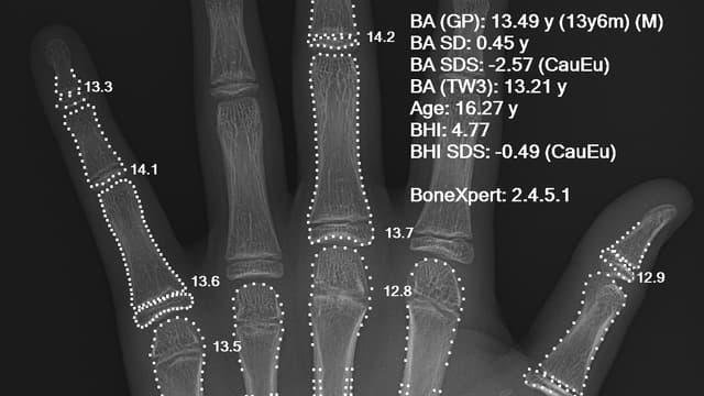 Radio d'une main d'un adolescent de 16 ans pour un test osseux via l'atlas Greulich et Pyle.