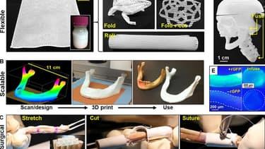 Des chercheurs américains ont fabriqué un os synthétique grâce à l'impression 3D.
