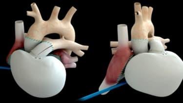 Le coeur artificiel de Carmat a été implanté sur un patient en France.