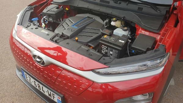 Derrière sa calandre fermée, le moteur électrique de ce Kona zéro émission.