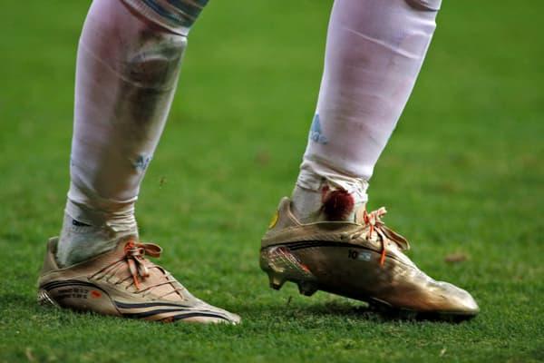 El tobillo izquierdo de Messi manchado de sangre