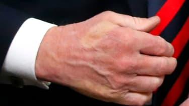 La trace blanche du pouce d'Emmanuel Macron apparaît sur la main de Donald Trump, après une poignée de mains au sommet du G7 à La Malbaie le 8 juin 2018