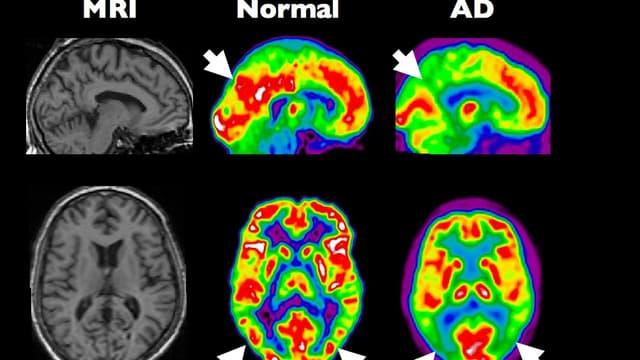 Les nouveaux systèmes d'imagerie permettent de mesurer l'activité en différentes zones du cerveau. Ici, la comparaison entre un organe sein et un touché par la maladie d'Alzheimer.