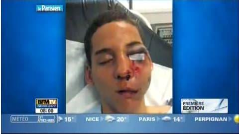 Le journal Le Parisien publie ce vendredi matin la photo du jeune homme blessé à l'oeil par une balle de flashball tirée par un policier.