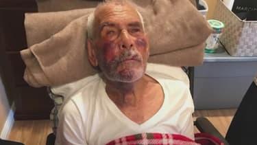 Rodolfo Rodriguez souffre de multiples fractures et contusions.
