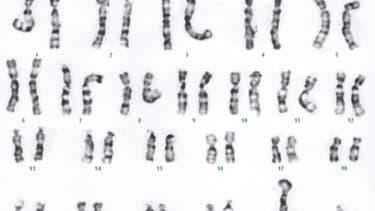 Les 23 paires de chromosomes de l'espèce humaine (photo d'illustration)