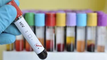 Des tests de dépistage du VIH - Image d'illustration