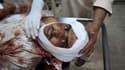 Un blessé est pris en charge par des médecins après un attentat suicide qui a détruit une mosquée des faubourgs de Peshawar, dans le nord-ouest du Pakistan. Selon les autorités locales, l'explosion a fait au moins 50 morts. /Photo prise le 5 novembre 2010