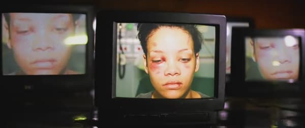 Les photos du visage de Rihanna après l'agression de Chris Brown