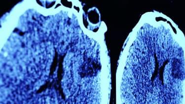 Un pour cent de la population mondiale souffre d'épilepsie.