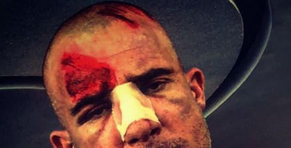 """Dominic Purcell s'est blessé sur le tournage de la saison 5 de """"Prison Break"""""""