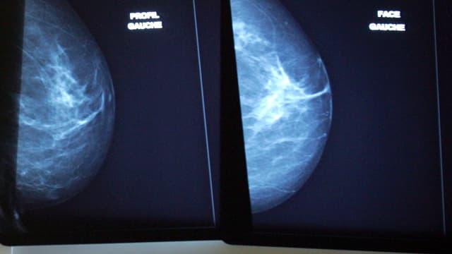 Examen d'une mammographie à l'institut Curie à Paris en 2006.