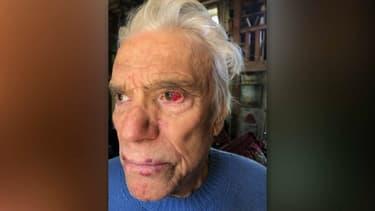 Bernard Tapie après avoir été agressé lors d'un cambriolage à son domicile, dimanche 4 avril 2021