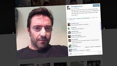 Dans le commentaire de sa photo, Hugh Jackman explique qu'il s'est fait retirer un carcinome.