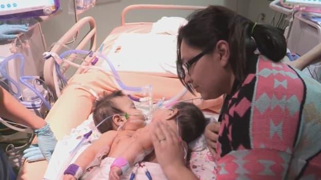 Les jumelles siamoises et leur mère, avant l'opération.