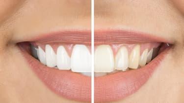 Les informations à savoir sur le blanchiment des dents remboursement mutuelle
