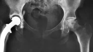 Radiographie d'une prothèse de hanche (photo d'illustration)