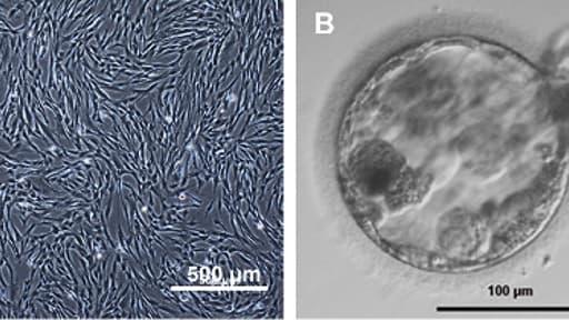 Images provenant de l'article sur la première création de cellules souches embryonnaires humaines par clonage.