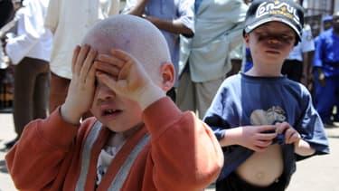 Un petit albinos au Burundi, le 27 février 2009