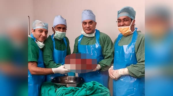 Les membres de l'équipe médicale posent à côté du foie malade retiré au patient souffrant d'une maladie génétique, à l'hôpital de Si Ganga Ram, le 29 octobre 2019