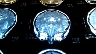 IRM d'un cerveau humain. (Illustration)