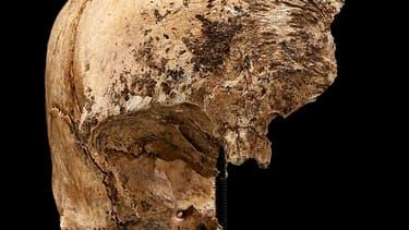 Entailles sur un crâne incomplet retrouvé lors de fouilles à Jamestown, en Virginie. Selon des chercheurs de l'institut Smithsonian, des colons installés dans cette ville se sont livrés à du cannibalisme pour survivre au très dur hiver de l'année 1609. Il