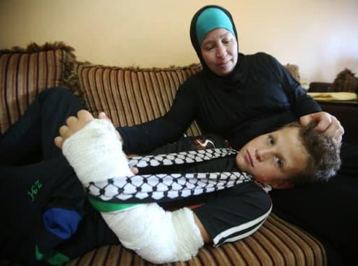 Mohammed Tamimi, 11 ans, dans sa maison à Nabi Saleh, près de Ramallah en Cisjordanie, le 29 août 2015, au lendemain d'affrontements entre les forces de sécurité israéliennes et des manifestants palestiniens